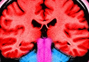 Healthy Brain cropped