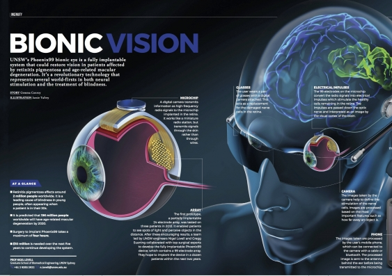 bionic_eye_final_17may2017.jpg