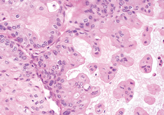 Mucinous ovarian cancer cells