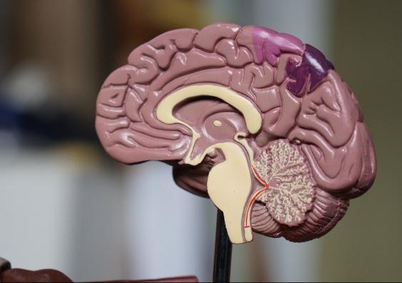A plastic model of the brain
