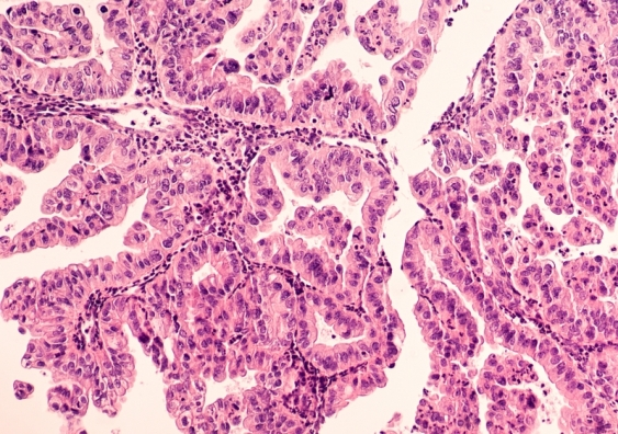 New Test Paves The Way For Tailored Treatment Of Deadliest Form Of Ovarian Cancer Unsw Newsroom