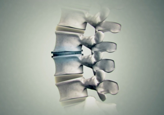 spinal_disc_regeneration.jpg