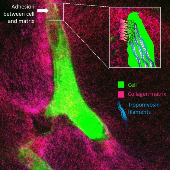 Microscopic photo of a cell in collagen, overlaid with graphics pointing to the cell, collagen matrix, and tropomyosin filaments