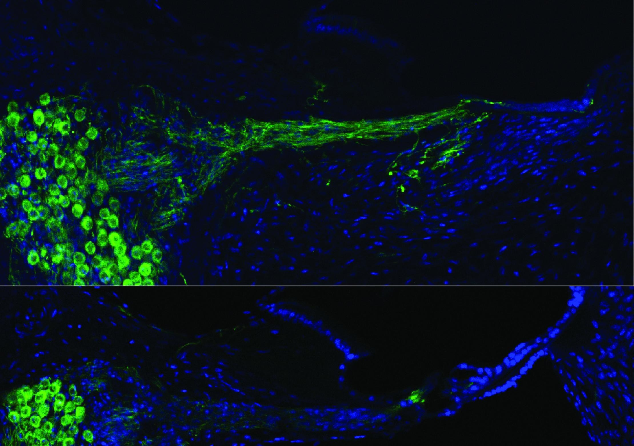 Gene therapy (top) vers no treatment (bottom) cochleae image5 0 0