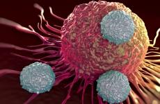 17_cancer_shutterstock.jpg