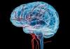 Brain stroke drupal