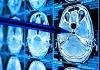 Artificial intelligence in medicine